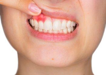 gum-disease-whitby-brooklin-dentist-brooklin-village-dental-care